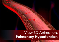 Pulmonary Hyperension